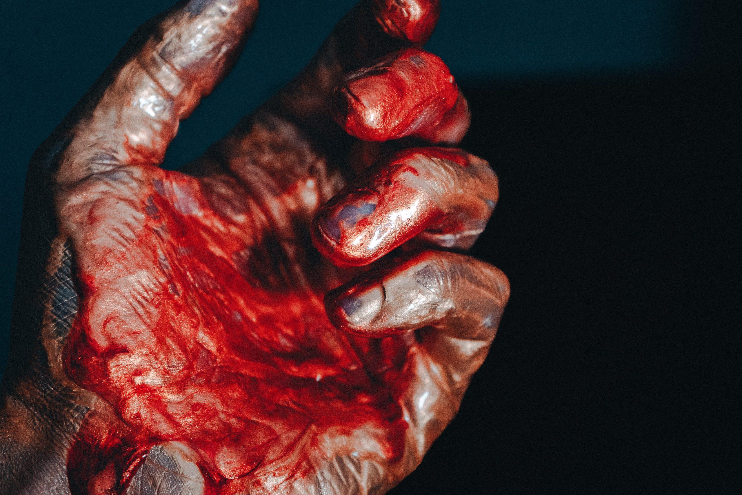 krv stekajúca po rukách