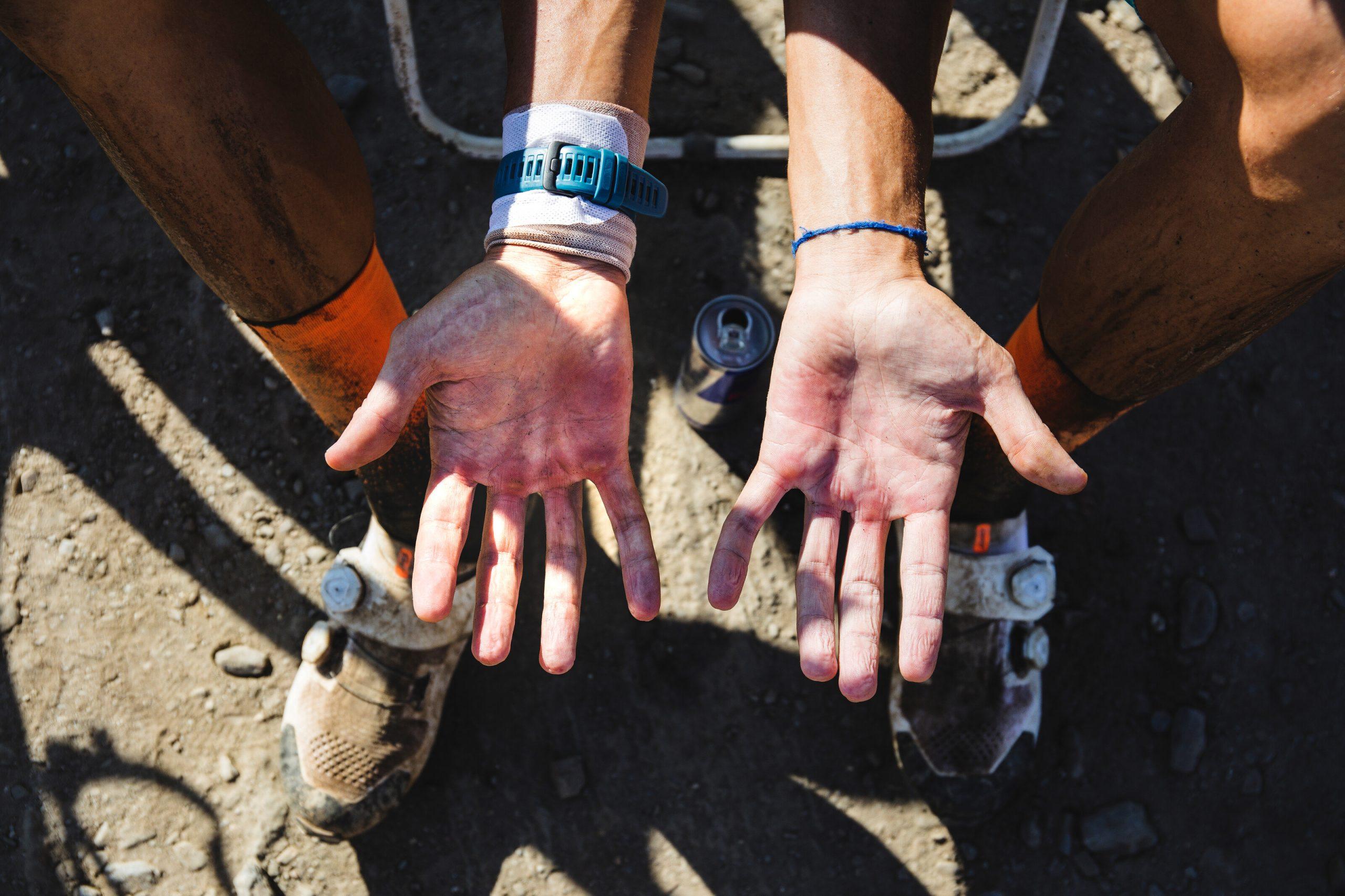 Detailný pohľad na zničené ruky cyklistu